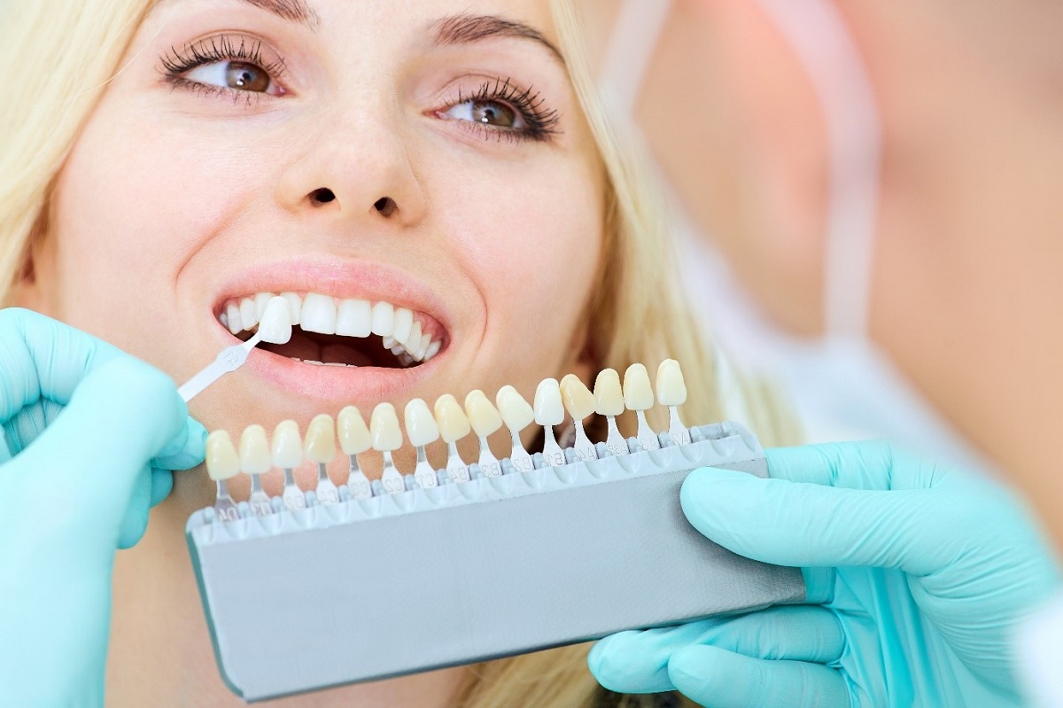 фото отбеливания зубов