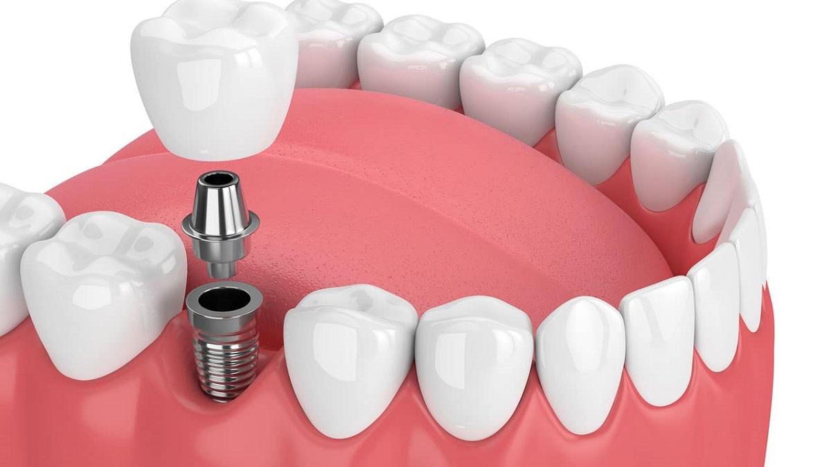 имплантация зуба стоимость